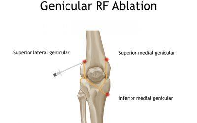 Genicular RF