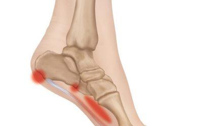 Latihan untuk nyeri telapak kaki