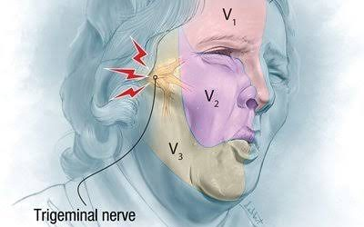 Kisah Nyeri : Trigeminal Neuralgia